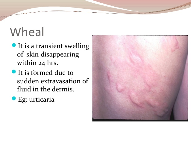 Study Medical Photos: Description Of Primary Skin Lesions