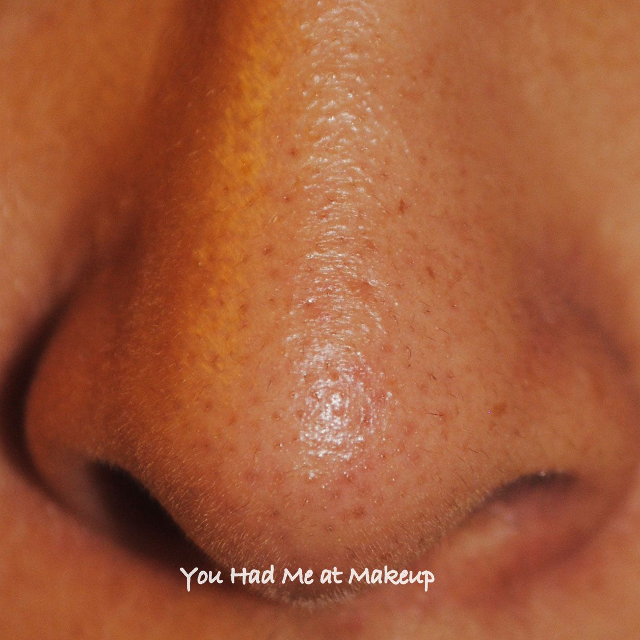 large pores on nose - photo #17