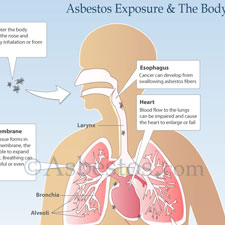 Asbestos Exposure & Mesothelioma Risk