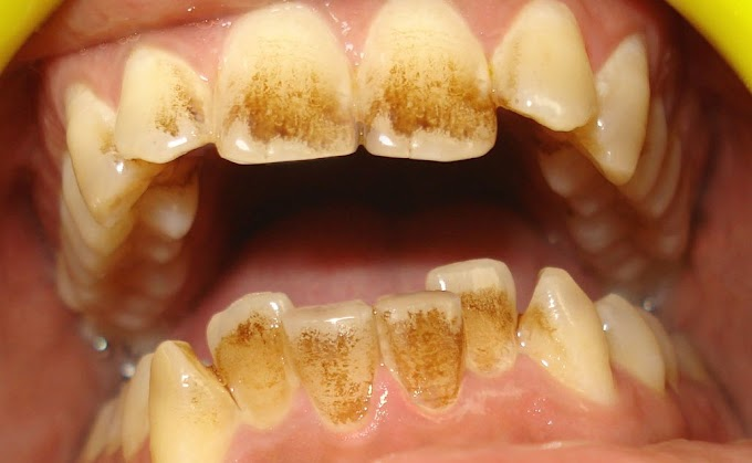 How To Remove Coffee Stains From Teeth