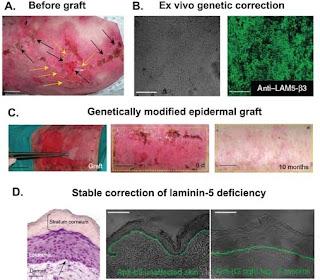 terapi- epidermolysis-bullosa-dengan-transplantasi-laminin5