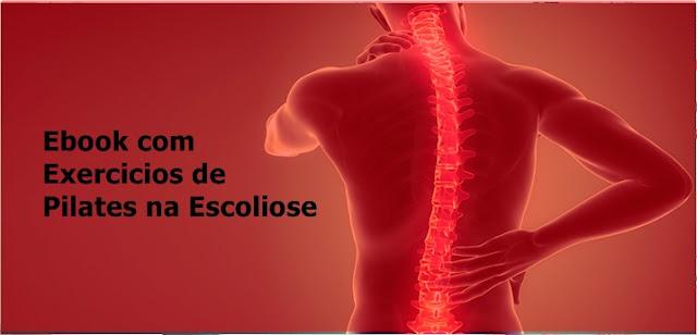 10 exercícios de Pilates indicado para Escoliose