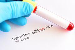Cara Menurunkan Trigliserida Tinggi Secara Alami