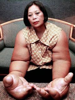 مرض نادر يمنح سيدة تايلاندية لقب أكبر ذراعين في العالم