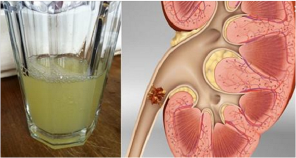 Say Goodbye to Your Kidney Stones Only With The Help Of Half-Cup of this Drink