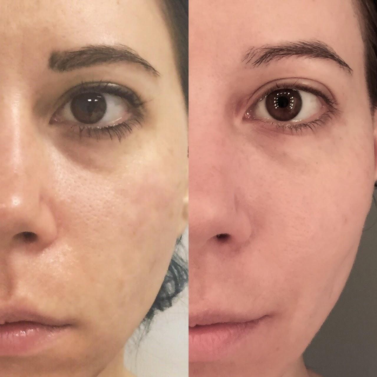 Estee Lauder Advanced Night Repair Before After Eye Creams