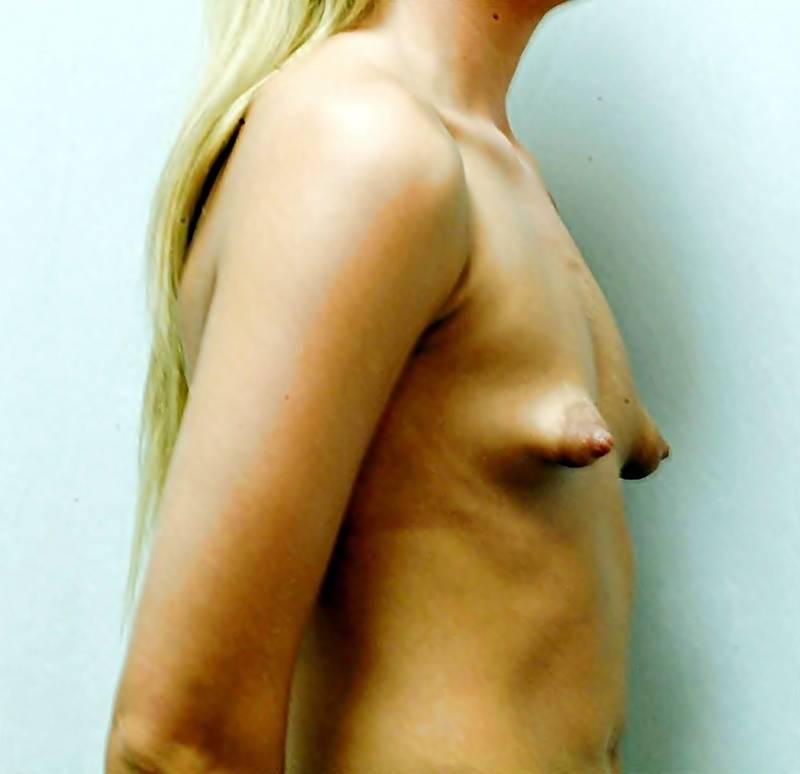 Small nipples pics