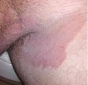 Obat gatal khusus atasi gatal gatal di selangkangan