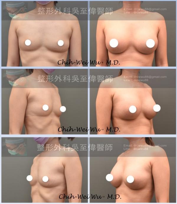 提乳增加罩杯
