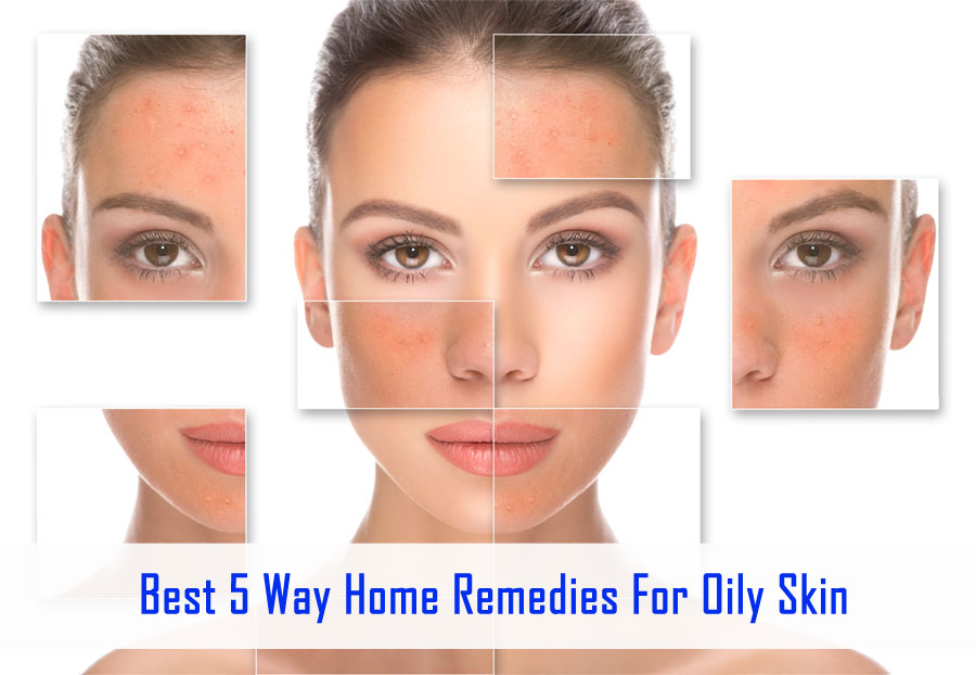 Best 5 Way Home Remedies For oily skin