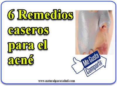 6 Remedios caseros para el acné