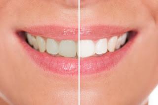 Tips On Teeth Whitening
