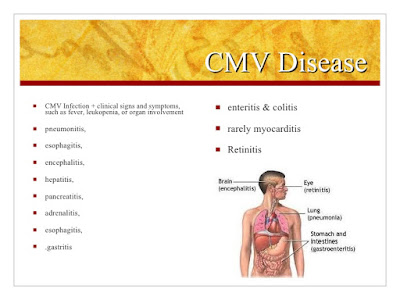 CMV infection treatment dr senthil kumar panruti chennai