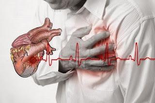 Cara Menyembuhkan Penyakit Jantung Koroner