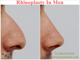 rhinoplasty in men istanbul