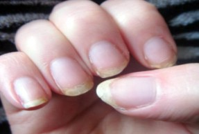 causes of brittle nails during menopause