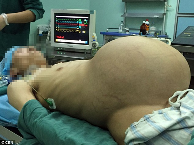 Giant tumor removed from Chinese man who looked heavily pregnant