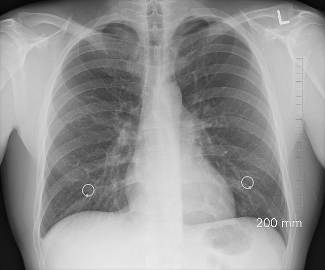 Fakta-fakta Mengejutkan Transplantasi Jantung dan Paru-paru 2