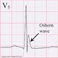 osborn waves