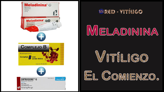 Meladinina - Vitiligo el comienzo.
