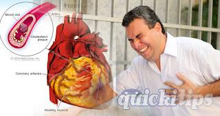 Middle Aged Men Have More Danger of Heart Attacks