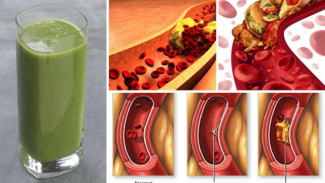 Clean Your Arteries With This Healthy Juice