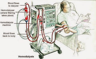 Mesin hemodialisis