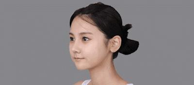 Wonjin's natural V-line