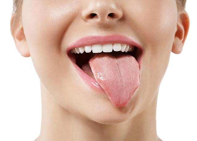 Tips Mengatasi Mulut Kering Karena Salah Minum Obat