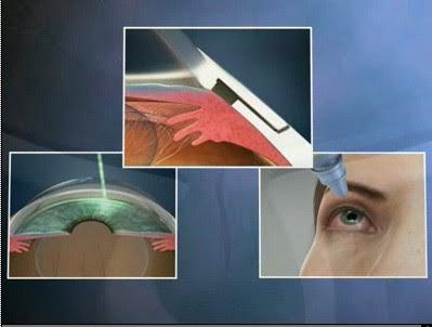 Terapia glaucoma