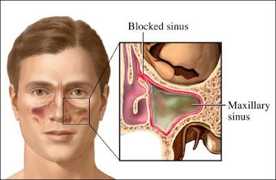 Cara Mudah Mengobati Sinusitis Sampai Tuntas