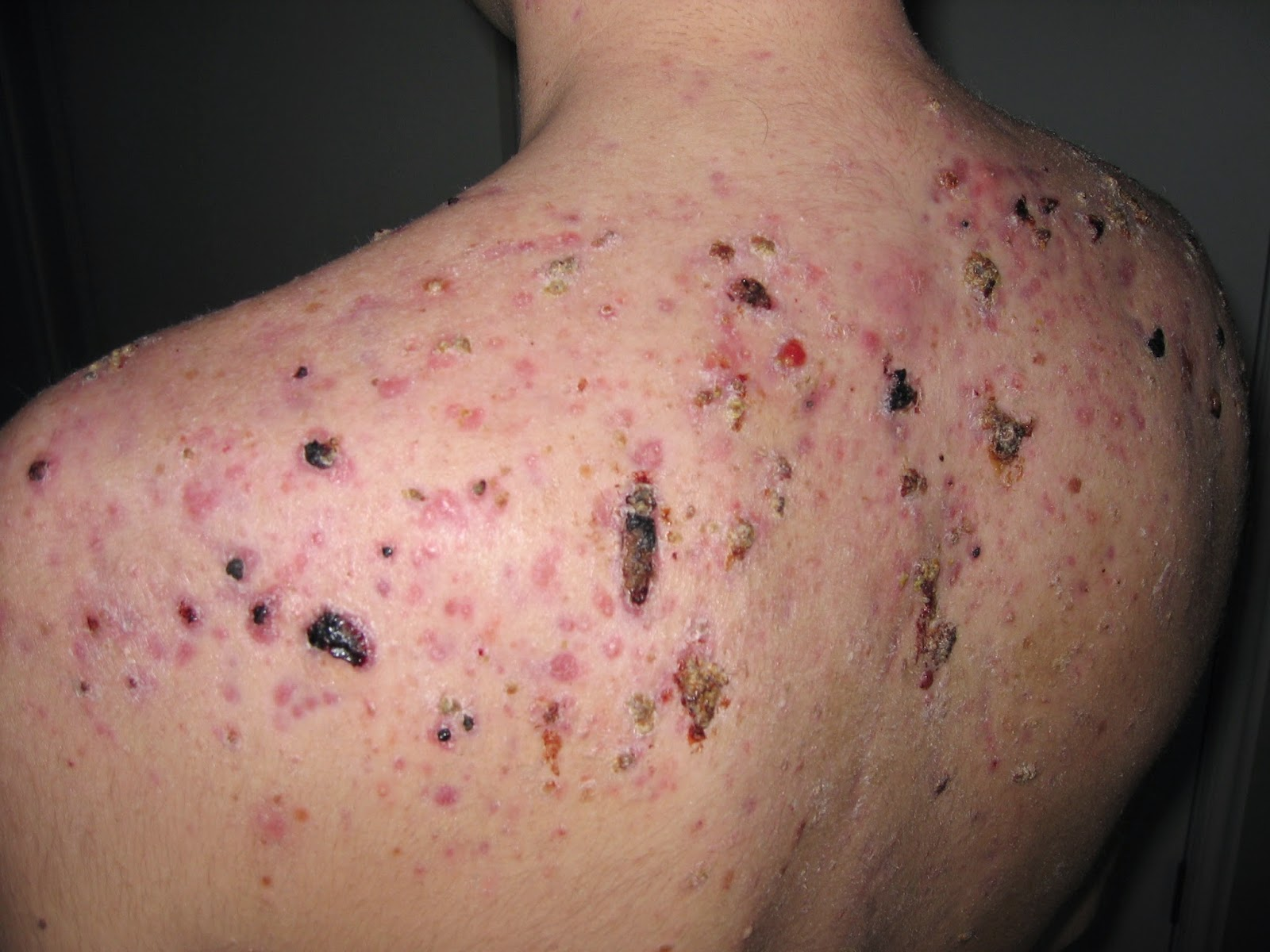 Ca 30 Resultater How To Get Rid Of Face Scab Overnight