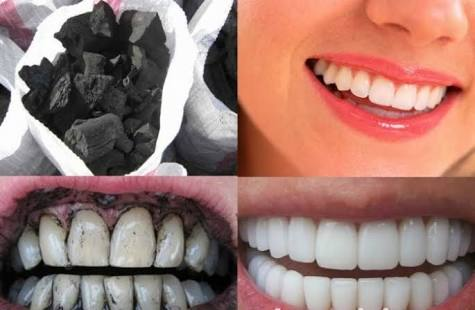 طرق تبييض الأسنان بالفحم وزيت الزيتون