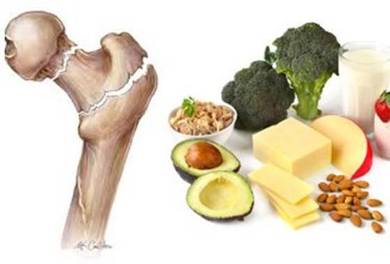 أعراض عامة لنقص الكالسيوم