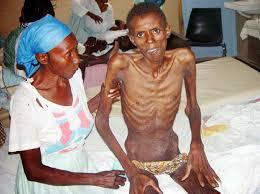 penderita HIV AIDS