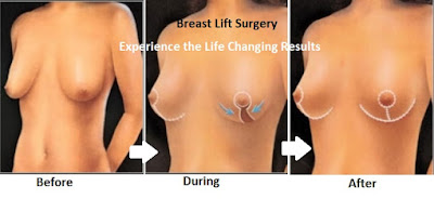 Breast Lift For Youthful Breasts