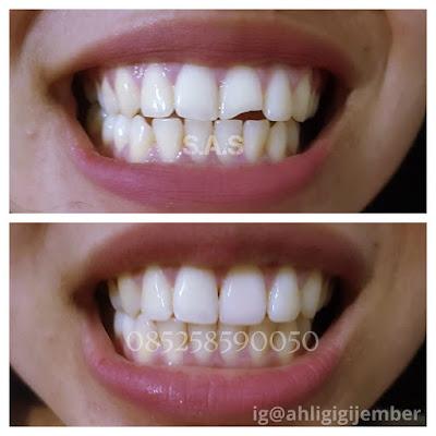 Tambal perbaiki gigi depan cuil sas ahli gigi pati