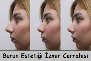 Burun Estetiği İzmir Cerrahisi