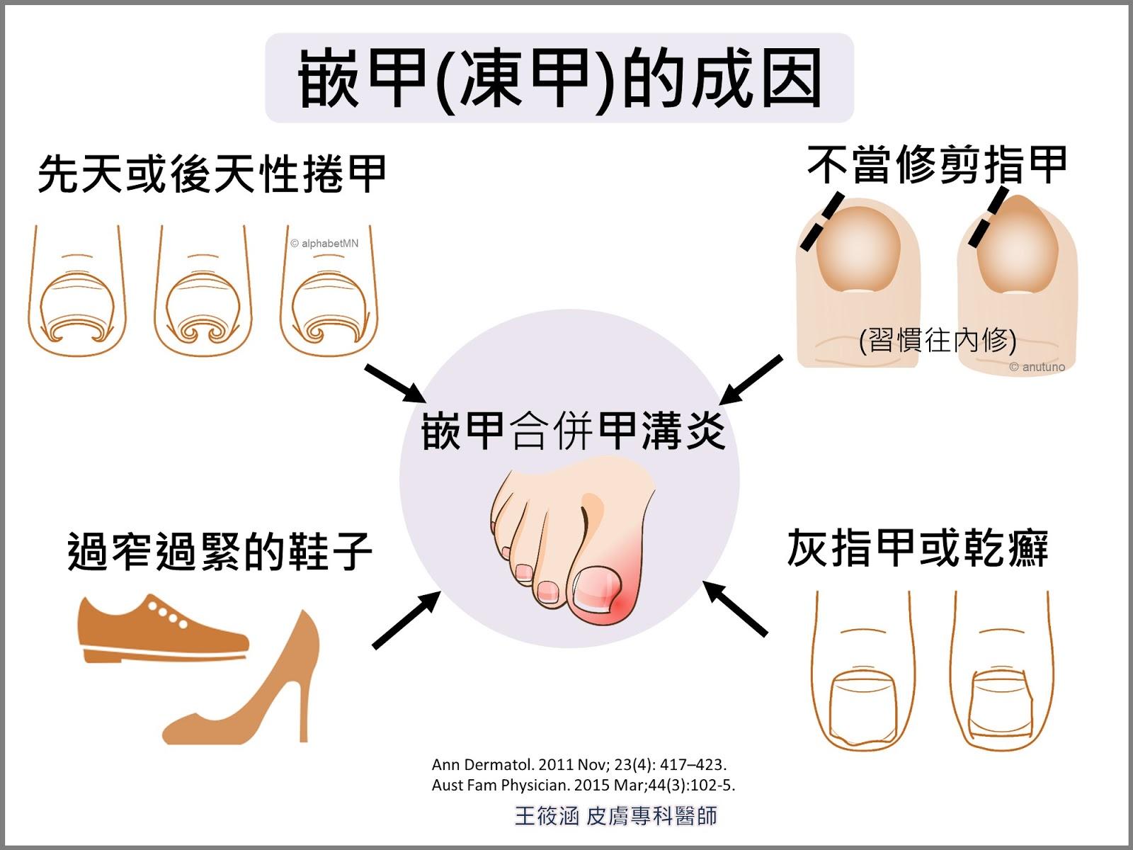 王筱涵醫師。皮膚專科。醫學與美學部落格。: 凍甲越修剪越糟, 該怎麼保養和治療