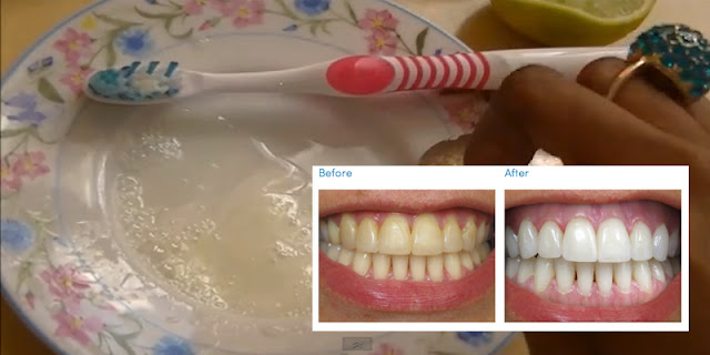 Home Remedies To Whiten Teeth At Home - How To Get Shiny Teeth!