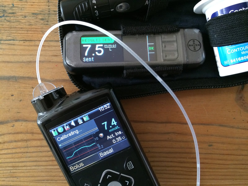 Every day ups and downs, a diabetes blog: 64 Days with the Medtronic