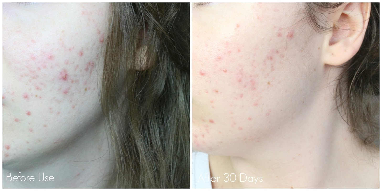 Neutrogena Visibly Clear Light Therapy Acne Mask Before & After