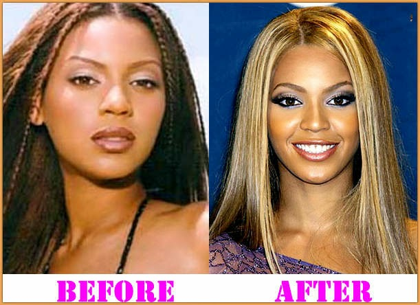 Beyonce Has Done Plastic Surgery Nose Job Breast Implants