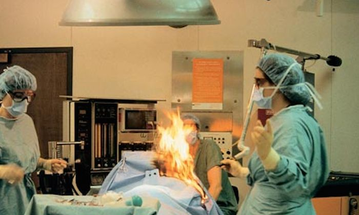 Image result for Woman Farts During Surgery, Gets Badly Burned