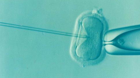 pixabay.com/en/ivf-fertility-infertility-icsi-1514174