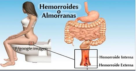 S ntomas de las hemorroides y como curarlas con remedios caseros - Alimentos prohibidos con hemorroides ...
