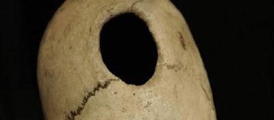 Μυστήρια της ανθρωπότητας: Γιατί οι πρόγονοι μας τρυπούσαν τα κρανία τους;