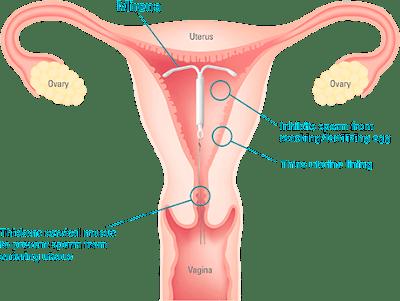 Prosedur Perancang Keluarga - Suntikan, IUD & Implan