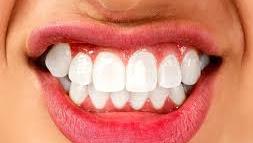 Tips Tentang Prosedur Pemutihan Gigi