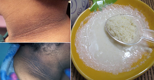 How To Whiten Dark Neck Within 20 Minutes At Home